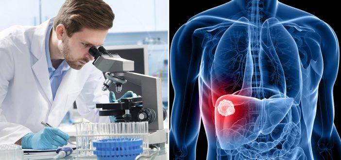 Új szervet fedeztek fel az emberi testben, ami ráadásul segíthet a rák elleni küzdelemben 1